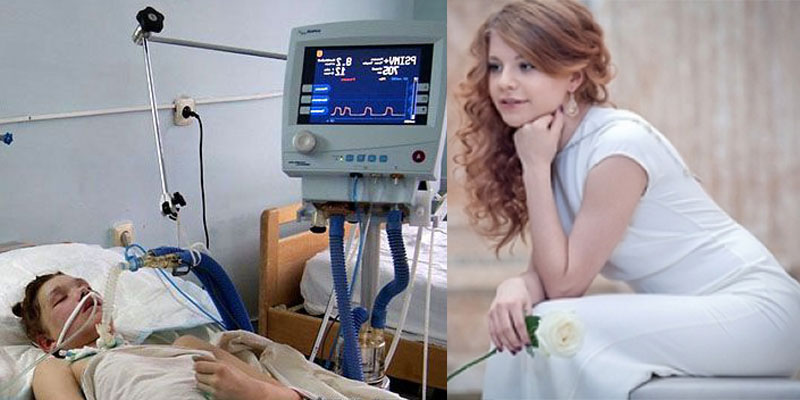 Фото: Маша Кончаловская до и после аварии