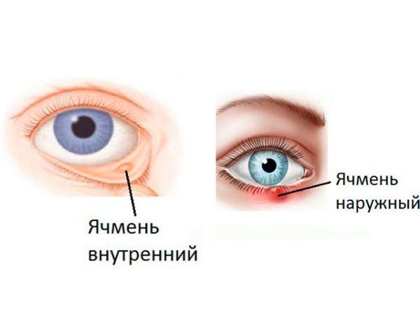 Какие виды ячменя на глазу существуют