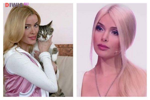 Алена Кравец: до и после пластики