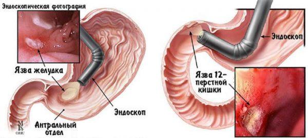 Диета при язве желудка и двенадцатиперстной кишки: меню