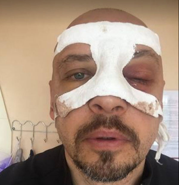 После аварии артисту сделали операцию на глазах