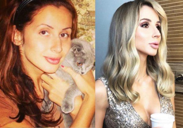 Фото певицы до и после пластики