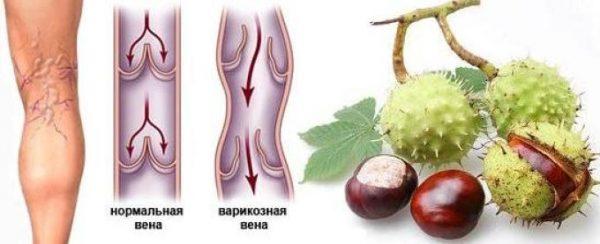 Каштан конский эффективное средство для лечения и профилактики варикозного расширения вен