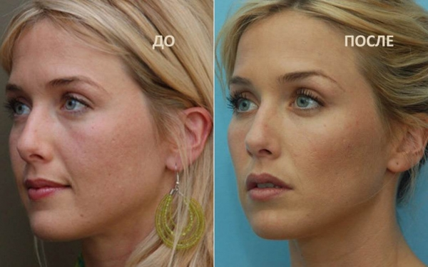 Фото до и после введения липолитиков