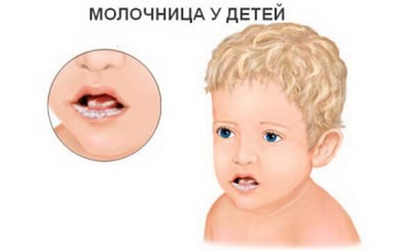 Почему возникает молочница во рту у детей