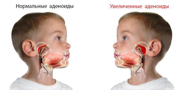 Увеличенные аденоиды у ребенка