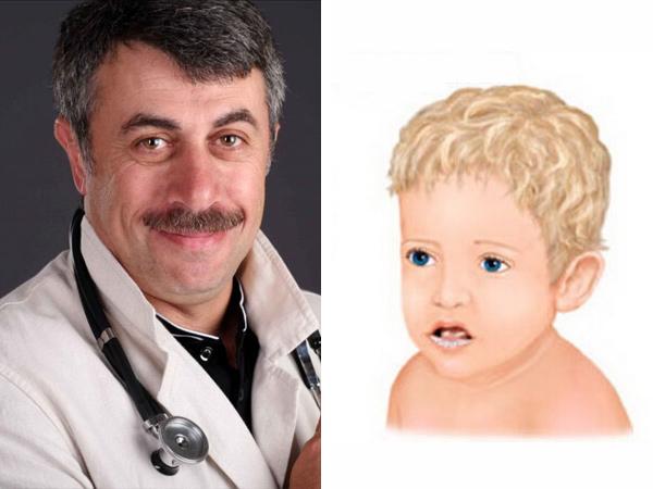 По мнению доктора Комаровского молочница возникает в результате пересыхания слюны во рту
