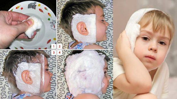 Как наложить лечебный компресс на ухо ребенку