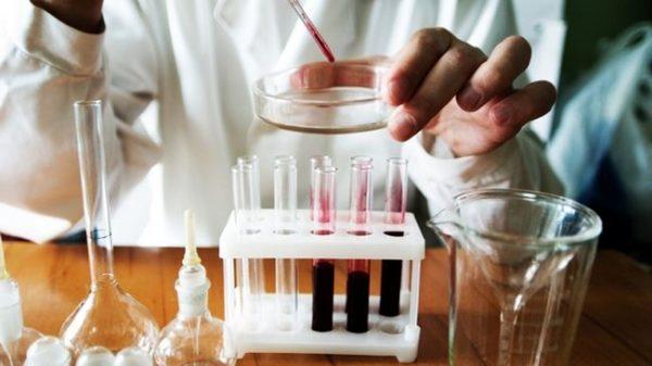Как выявить лимфоцитоз