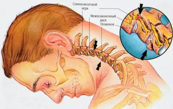 Боль в области шеи может возникнуть из-за остеохондроза