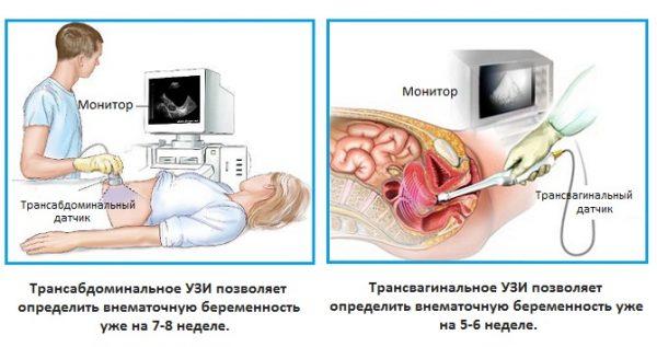 Способы определения внематочной беременности на ранних сроках