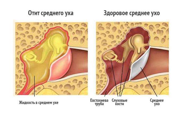 Боль в ушах может возникать при среднем отите