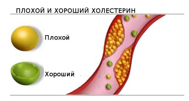 Содержание холестерина в организме