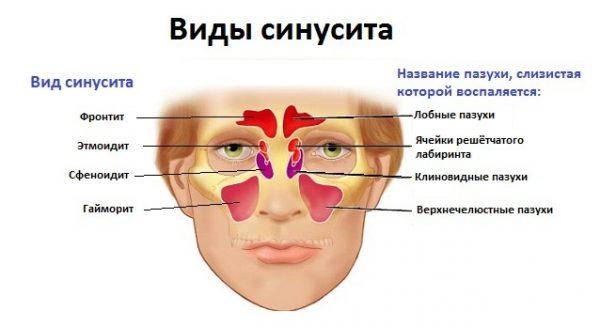 Виды синусита у взрослых