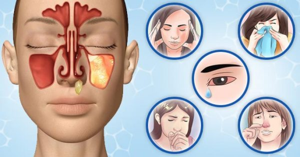 Симптомы синусита