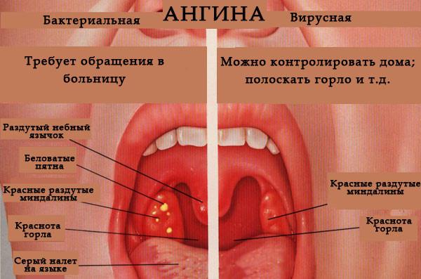 Что такое ангина