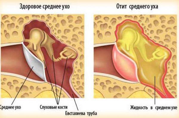 Средний отит одна из причин заложенности уха
