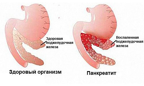Панкреатит одна из причин вздутия живота