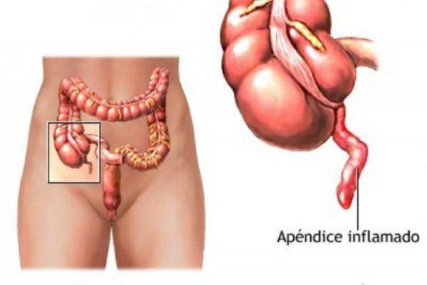 Аппендикулярный абсцесс