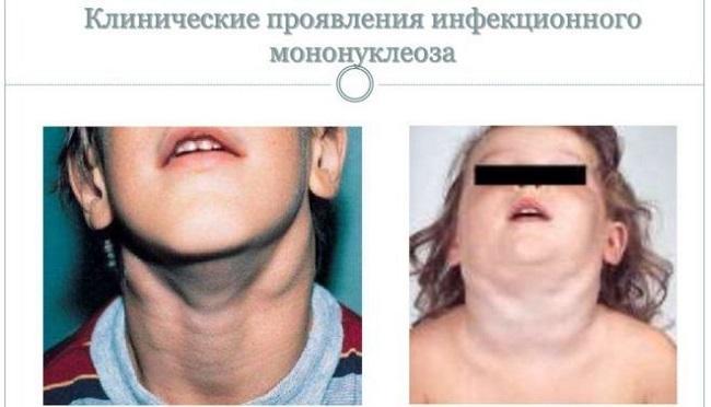 Клинические проявления мононуклеоза
