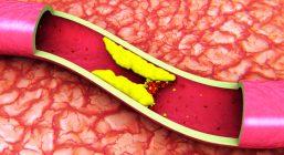 US-Anticoagulation-Therapy-Market