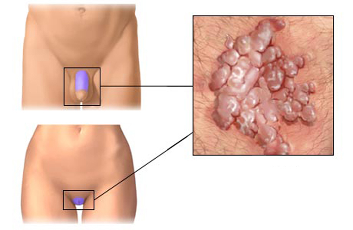 Фото папиллом у женщин в гинекологии