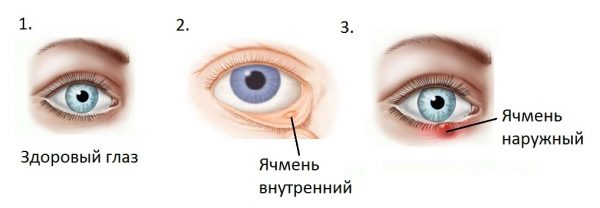 Что такое ячмень на глазу и какие его виды существуют