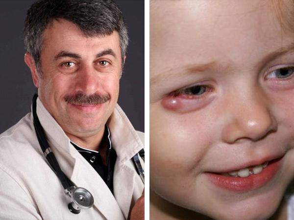 При появлении нарыва на глазу у ребенка обратитесь за помощью к лечащему врачу
