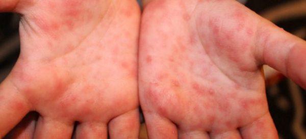 Сыпь на руках из-за вирусной инфекции