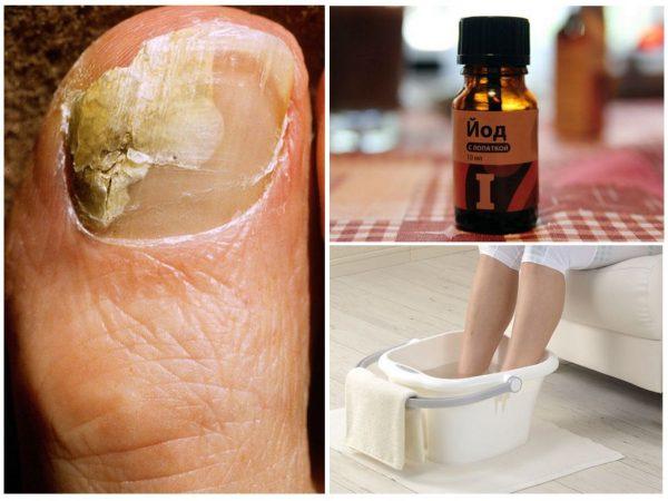Лечение грибка на ногах йодом