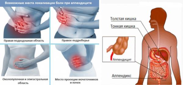 Симптомы и первые признаки