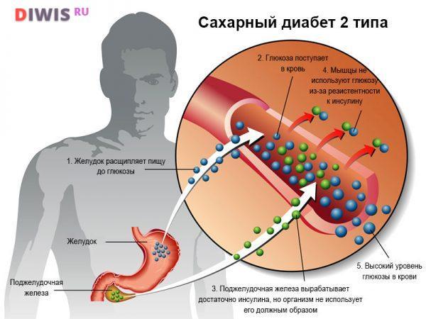 Народные средства для лечения сахарного диабета
