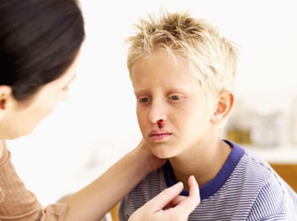 Кровь из носа может быть симптомом разных заболеваний