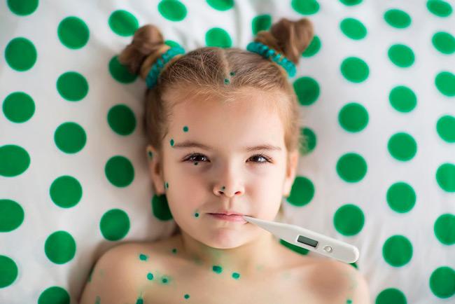 Зеленка в лечении пузырьков обязательна