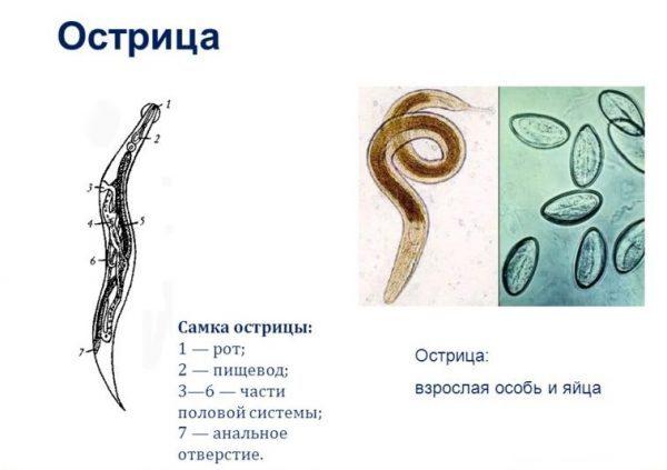 Симптомы заражения острицами