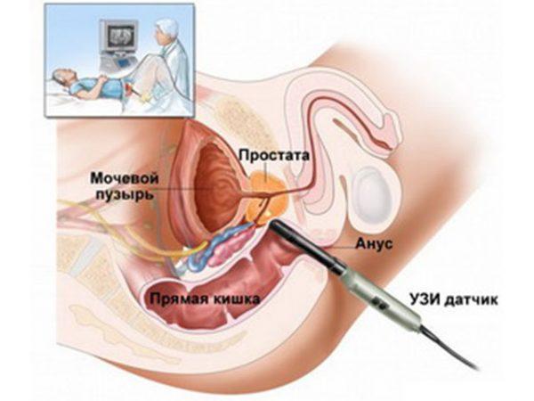 Как проводиться диагностика заболевания