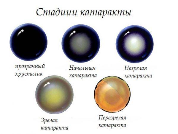 Стадии катаракты глаз