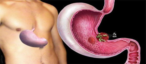 Бактерия Хеликобактер пилори вызывает гастродуоденит