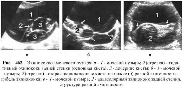 Эхинококкоз мочевого пузыря