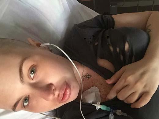 У Елены Степуниной был рак груди степени