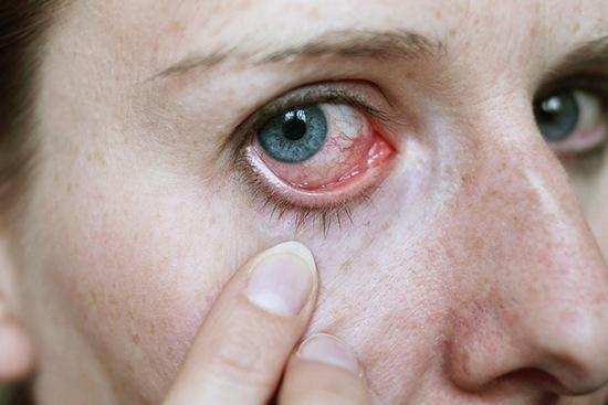 Капли Тауфон от покраснения глаз