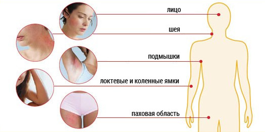Где может проявляться дерматит