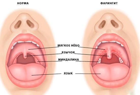 Фарингит горла