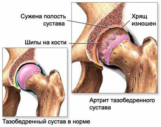 Коксоартроз тазобедренного сустава