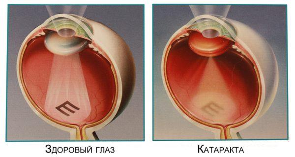 Как выглядит катаракта глаз