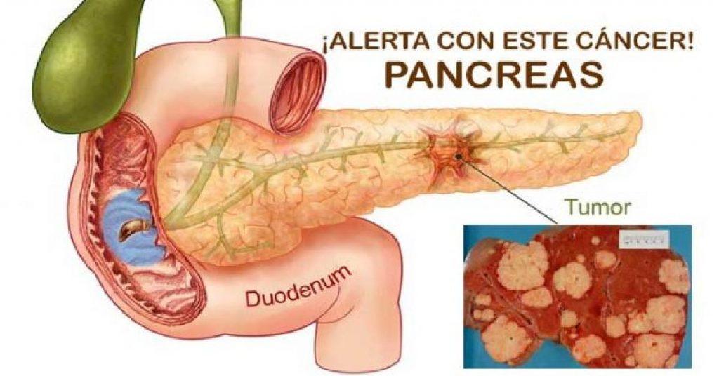 por-ignorar-estas-5-senales-es-que-a-muchas-personas-se-les-desarrolla-un-cancer-de-pancreas-000518088