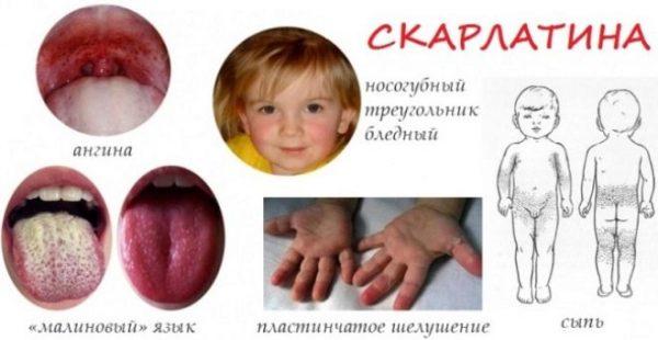 Как проявляет себя заболевание