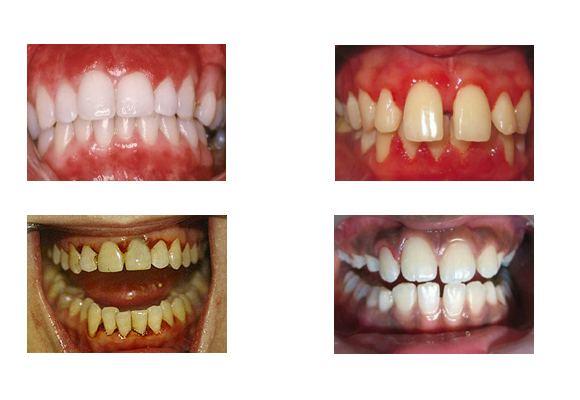 Формы гингивита на зубах