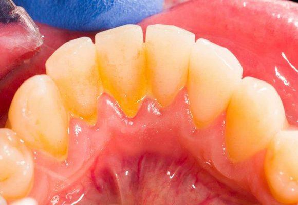 Гингивит начинается с недостаточной гигиены рта