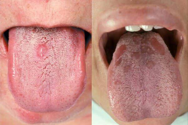 Почему возникают язвочки во рту